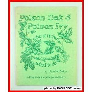 Poison oak and poison ivy: Why it itches and what to do